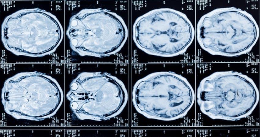 El riesgo genético de TDAH puede detectarse en el cerebro en niños